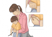 Cấp cứu dị vật đường thở cho trẻ em